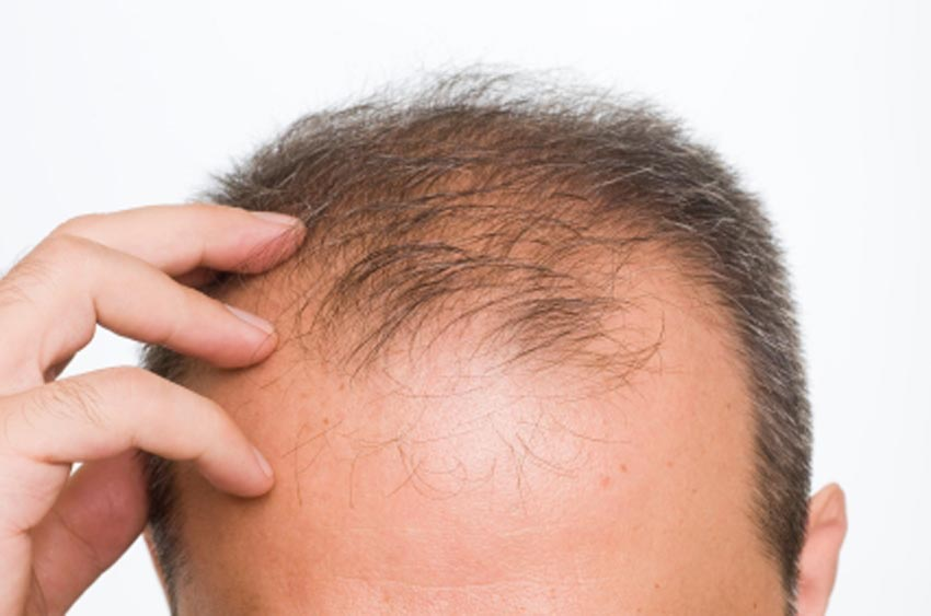 ¿Cómo saber si sufro de alopecia?